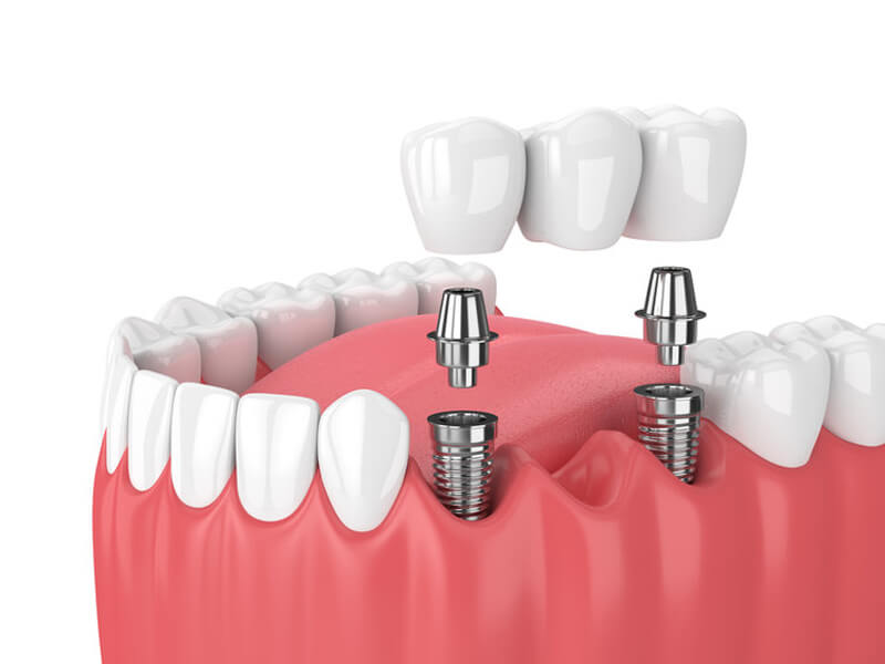 Implants With Bridge On Lower Arch
