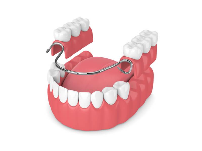 Partial Denture Lower Molars