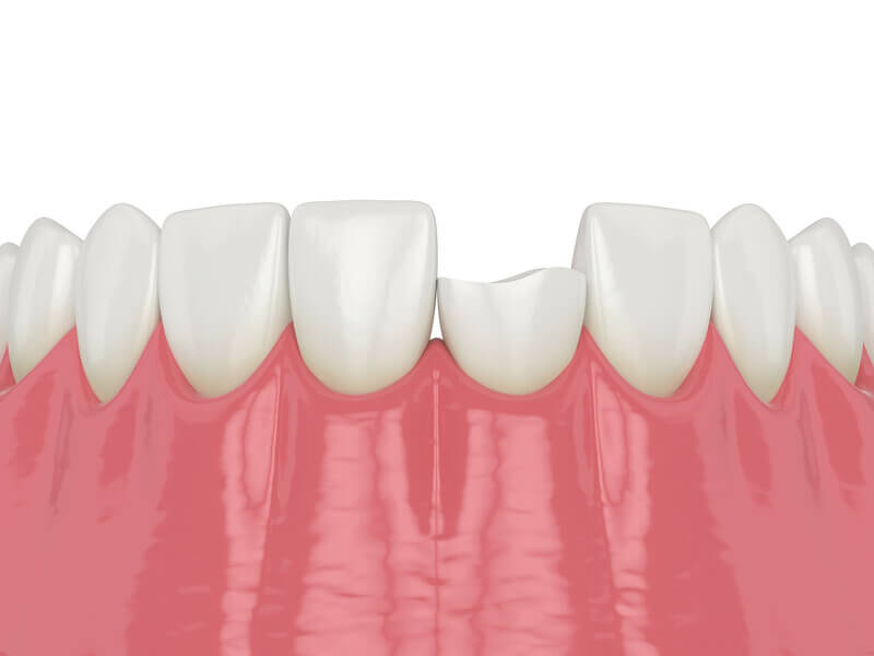 Chipped Tooth Repair in Rohnert Park CA