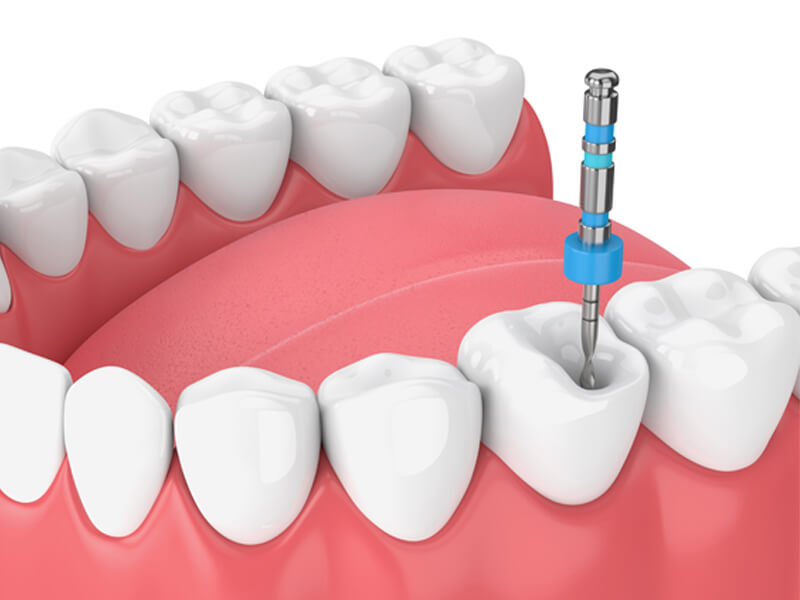 Root Canals in Rohnert Park CA