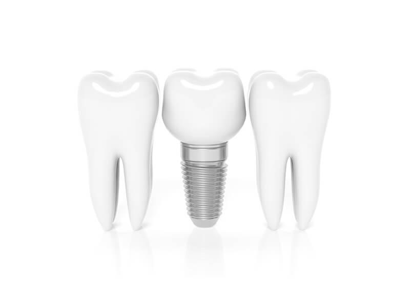 Dental Implants in Rohnert Park CA