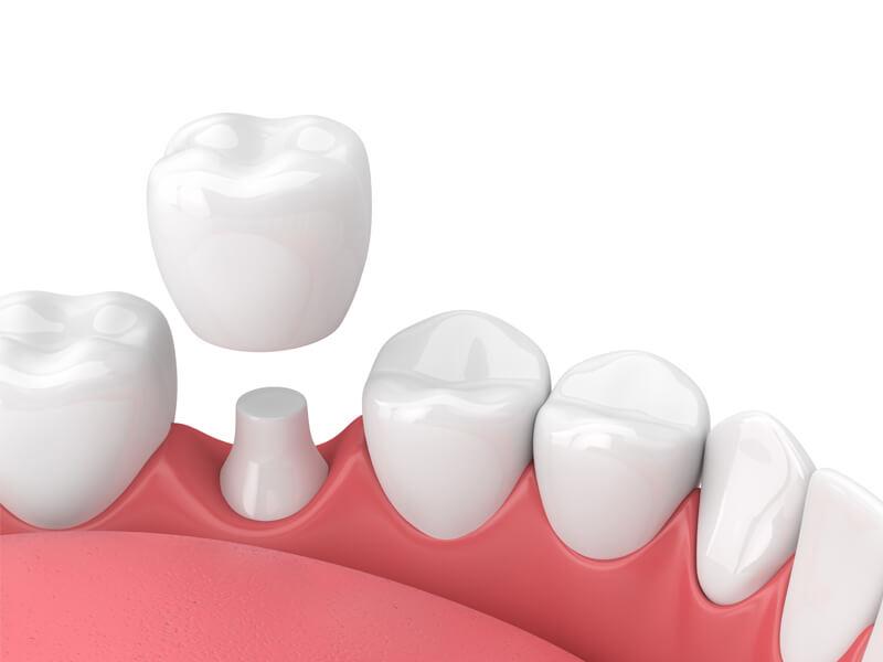 Dental Crowns in Rohnert Park CA