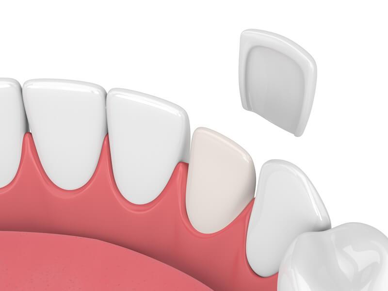 Dental Veneers in Rohnert Park CA