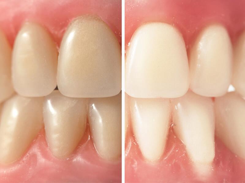 Teeth Whitening in Rohnert Park CA
