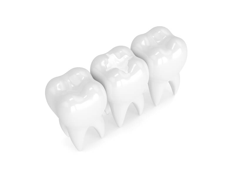 Tooth Fillings in Rohnert Park CA