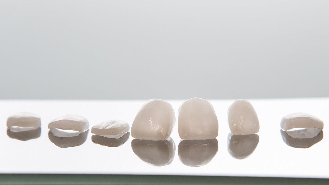 Dental Bonding vs. Veneers: Which Is Better?