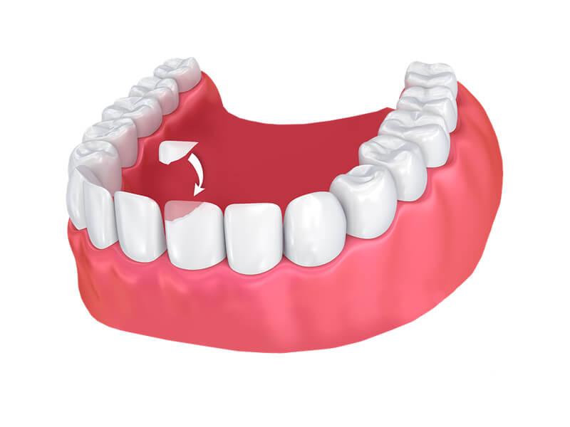 Tooth Bonding Example Graphic