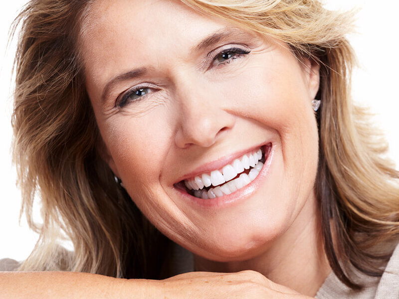 Woman Smiling With Tooth Bonding Treatment
